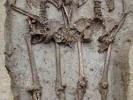 Lesbian Skeletons Locked in Embrace for All Eternity